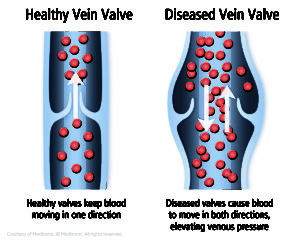 Vein Treatment Options