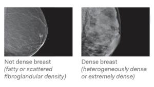 Breast Density 1