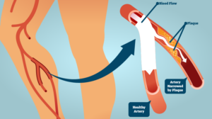 Peripheral Artery Disease – What Is It and How Can I Prevent It? 1