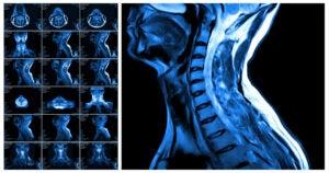 Section Spotlight: Neuroradiology 3