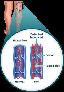 The ABCs of Vascular Disease 3