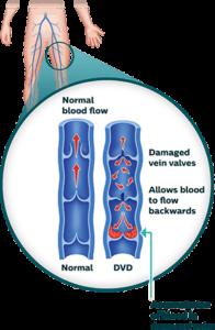 The ABCs of Vascular Disease 2