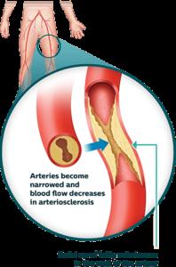 The ABCs of Vascular Disease