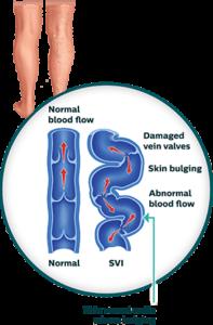 The ABCs of Vascular Disease 4