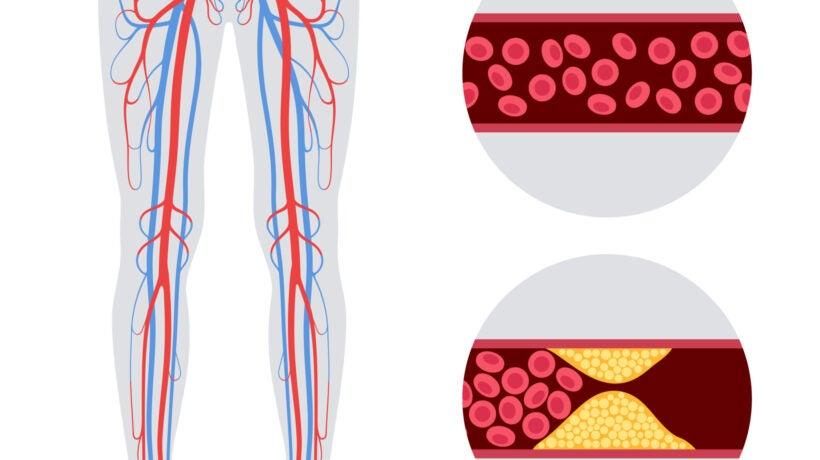 Peripheral Artery Disease Awareness Month