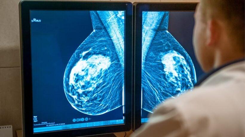 Section Spotlight – Breast Imaging
